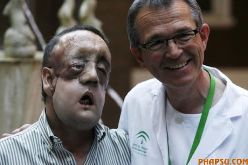 epa02142658 A nurse (L) laughs next to Rafael (R), the first face transplant patient in Andalusia during a press conference they held after he was discharged from the Virgen del Rocio hospital in Seville, southern Spain, 04 May 2010. This is the second facial tissue transplant done in Spain and the ninth worldwide. The surgery was carried out by over 100 doctors in January 2010 and lasted 30 hours. Dr. Gomez Cia stated the surgery was 'a success' and was the only solution for the Neurofibromatosis type one Rafael suffered.  EPA/EDUARDO ABAD