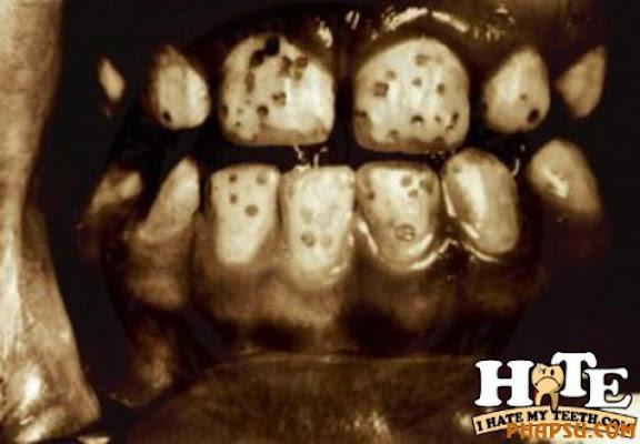 about_teeth_640_22.jpg