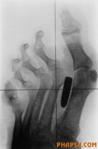 x_ray_23.jpg