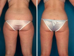 liposuction make your flat