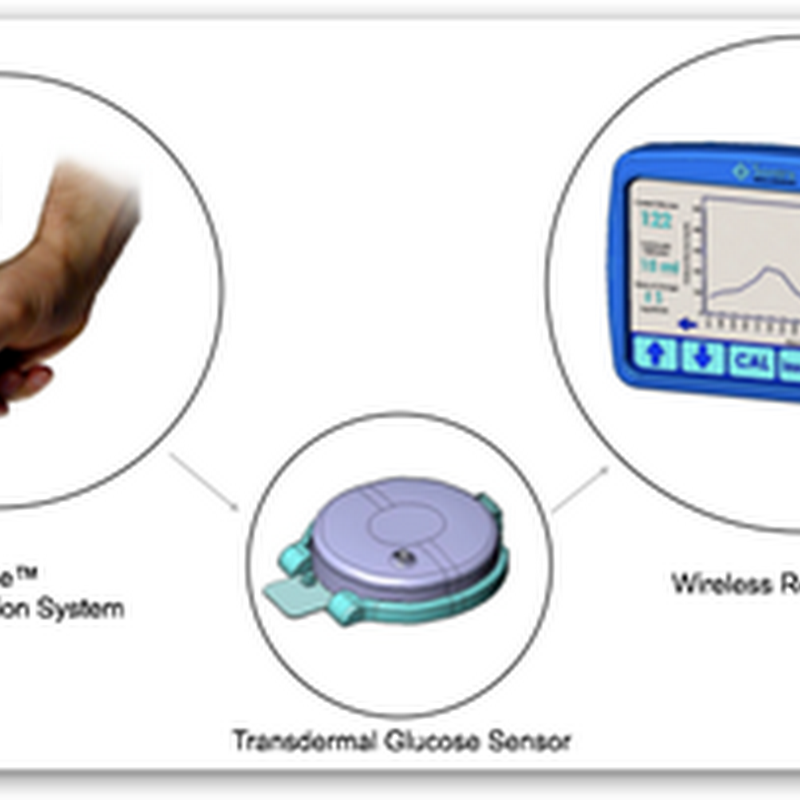 Prelude SkinPrep Begins Clinical Trials for Needle Free Wireless Controlled Glucose Monitoring and Delivery