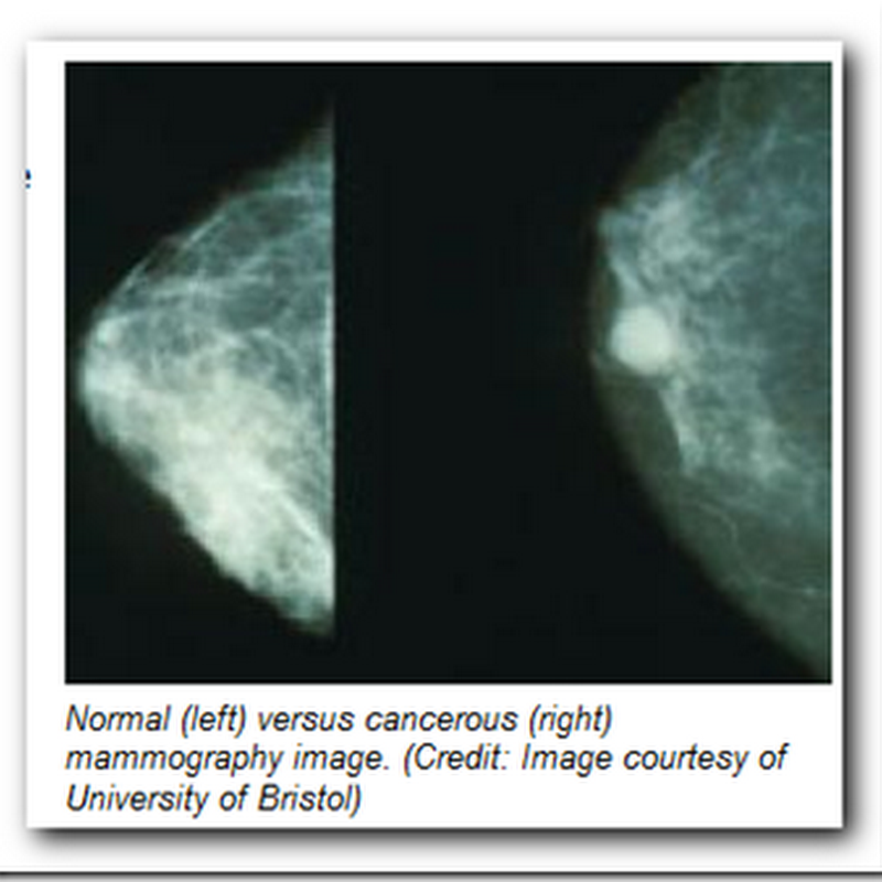 Breast Cancer Screening – Radar Breast Imaging in Trials