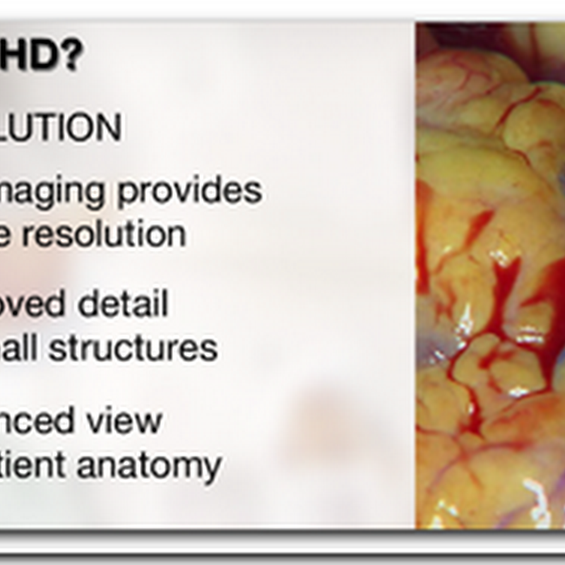 High Definition Surgery from Sony with four new products