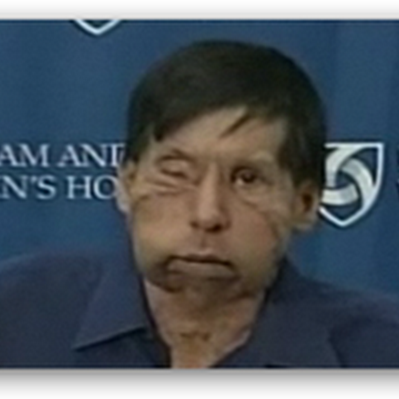 2nd Facial Transplant Patient Makes Public Appearance – Brigham and Woman's Hospital