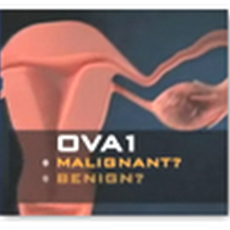 New Blood Test Approved by FDA Evaluates Ovarian Masses for Malignancy Prior to Surgery
