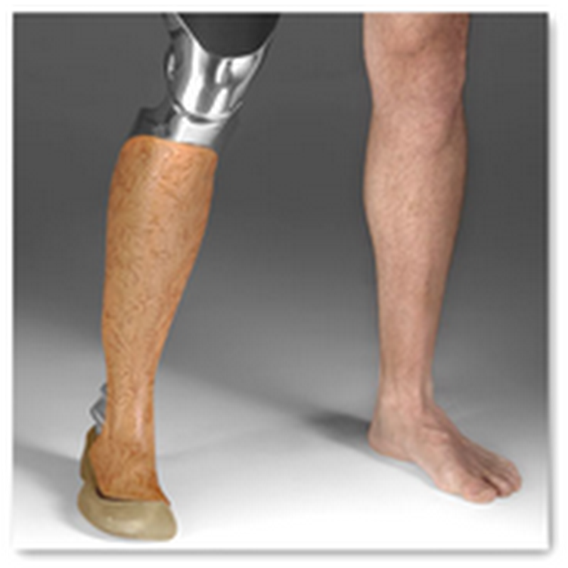 Need a Prosthetic Leg–3D Printing Will be Able to Generate One for You Soon for Around $5000