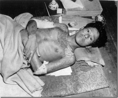 NAGASAKI  A-BOMB VICTIM WWII