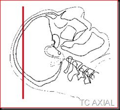 TC AXIAL