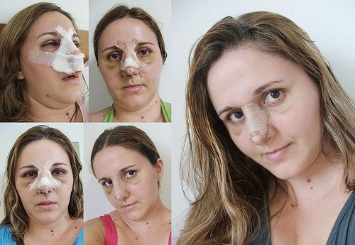Как сделать отек лица