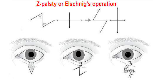 z plasty(elschnig's operation)
