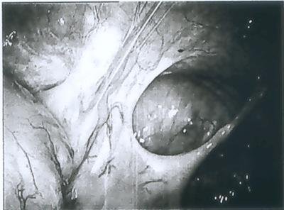 laparoscopy 01A