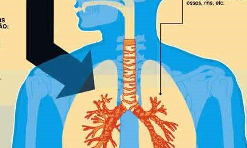 – Tuberculose pulmonaire (Ph. static.hsw.com.br)