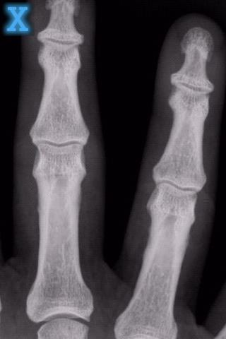 玩娛樂App|X-射線掃描儀免費|APP試玩