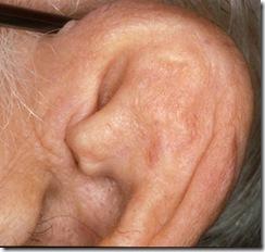 cauliflower ear