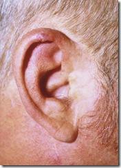 chondrodermatitis nodularis