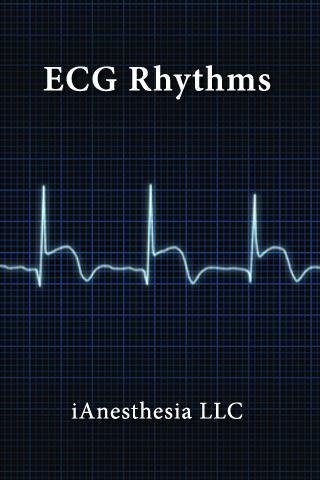 【免費醫療App】ECG Rhythms (The EKG Guide)-APP點子