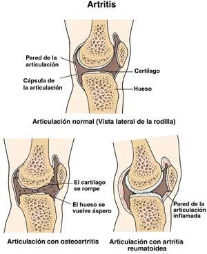 ArtritisVSD