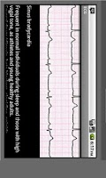 Screenshot of Electrocardiogram ECG Types