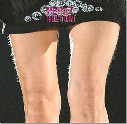 http://lh3.ggpht.com/fisherwy/R9Qtt6LXUNI/AAAAAAAANzc/Gn-r0waSICQ/Celine+Dion+hairy+legs%5B3%5D