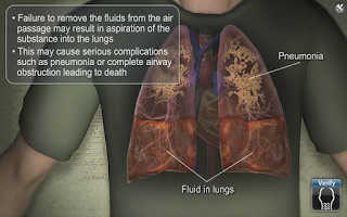 Screenshot of Medrills: Airway Suctioning