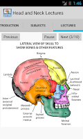 Screenshot of Head and Neck Lectures
