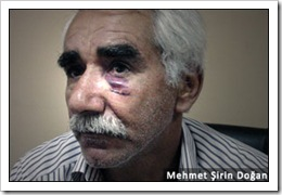 mehmet_sirin_dogan iskence polis