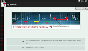 Screenshot of EKG TÜRKÇE
