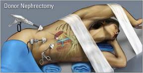 Operasi Laporoskopi