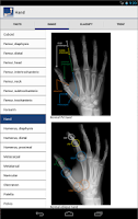 Screenshot of Ortho Traumapedia