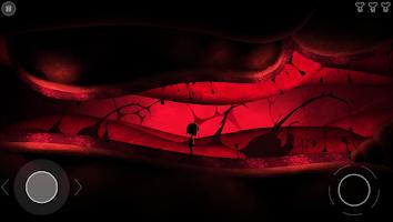 Screenshot of Nightmare: Malaria