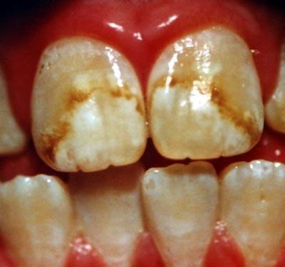 Cuidado con el Flúor Fluorosis%5B7%5D