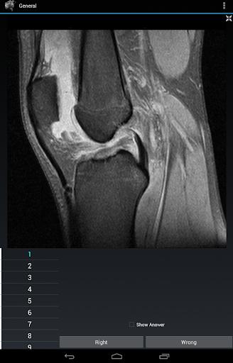 【免費醫療App】Radiology Flashcards: General-APP點子