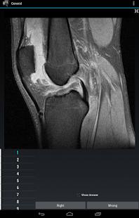 Radiology Flashcards: General screenshot