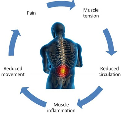 Pain Cycle caused by tension and how to resolve