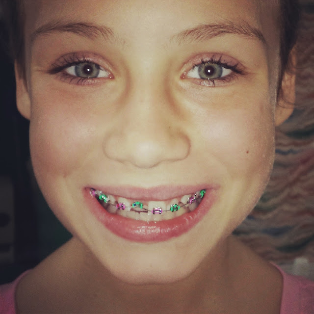 Calista And Ursula: Braces