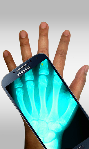Xray Scanner Prank 14.0 screenshots 2