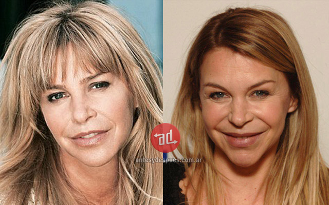 Stars with Botox, Leslie Ash