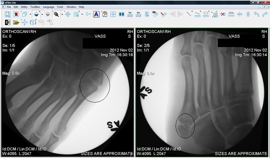These are my actual x-rays from the orthopaedic examination at R -lh3.ggpht.com