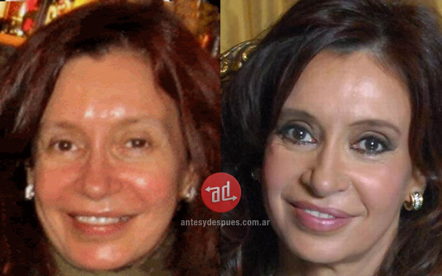 Lip augmentation of Cristina Kirchner