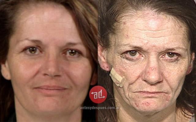 Antes y despues de las drogas