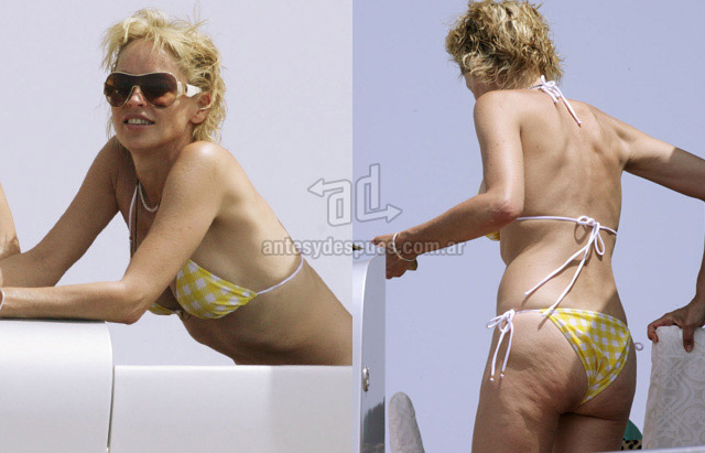 Cellulite of Sharon Stone
