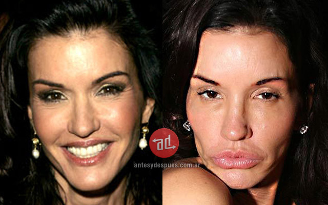 Lip augmentation of Janice Dickinson