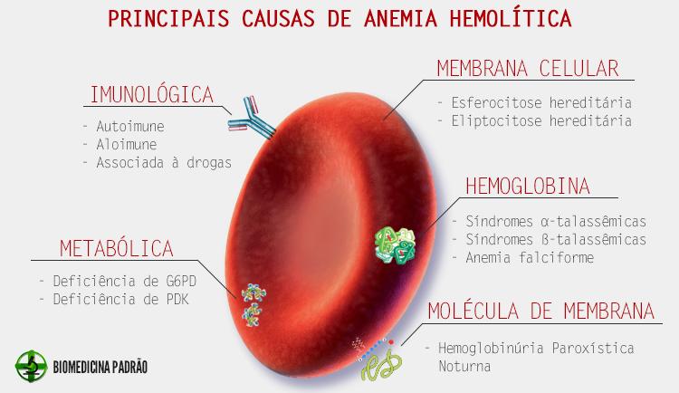 Resultado de imagem para Anemia Hemolítica