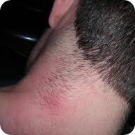 pontos pretos nas pernas pêlos encravados