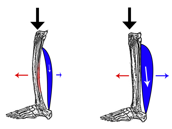 Running Writings Injury Series Medial Tibial Stress Syndrome
