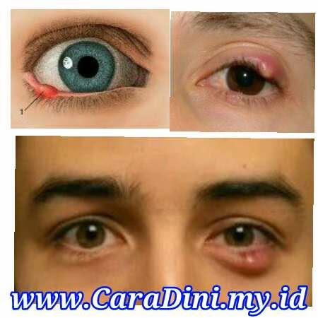 Mata Bintitan