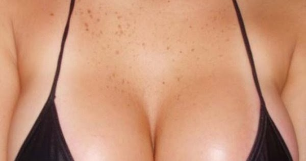 Home Remedies for Breast Enlargement Top 10 Home Remedies