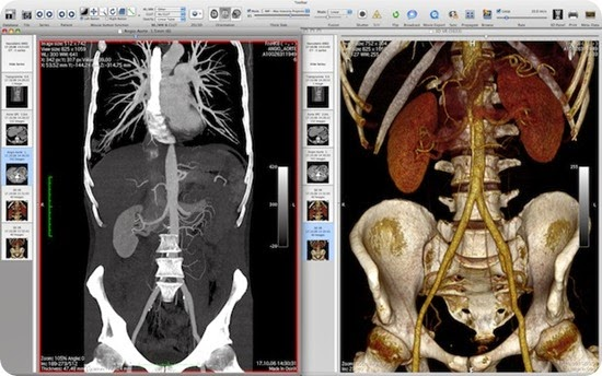 osirix-mri-dcm-viewer