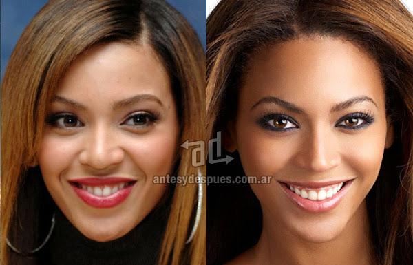 Nose Job, Rhinoplasty, Beyonce