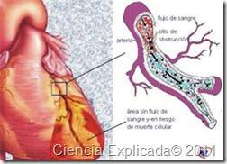 miocardio enfermedad